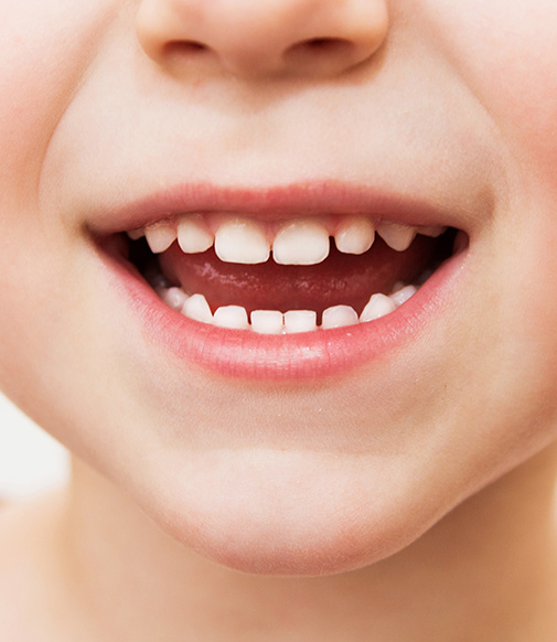 closeup of a child's smile