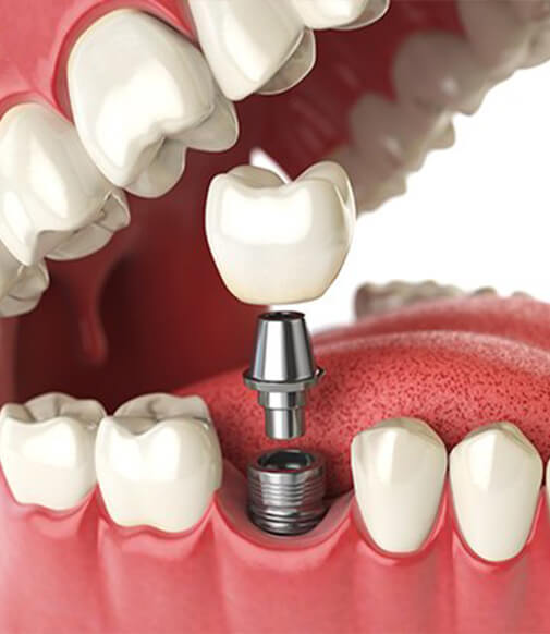 illustration of an implant