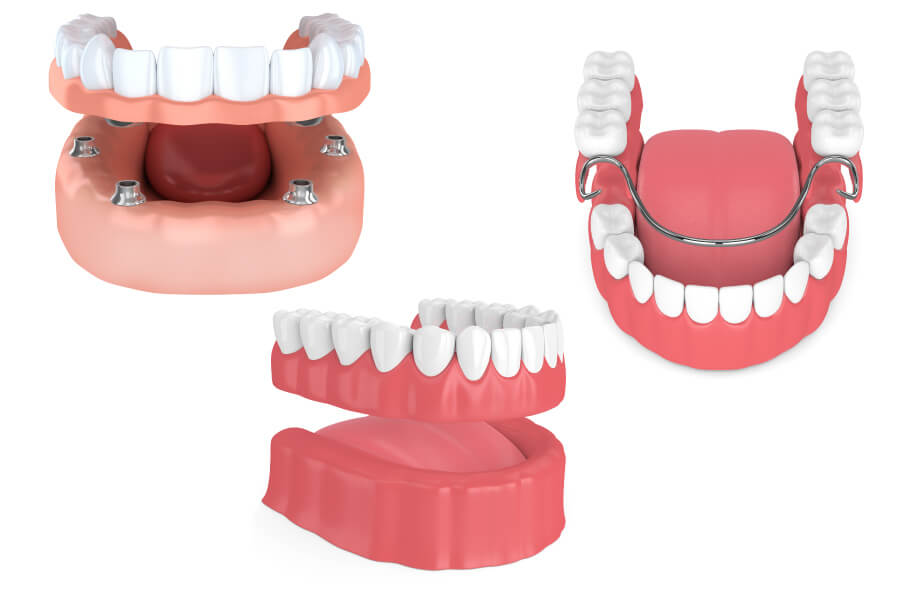 Implant-supported dentures, removable full dentures, and partial dentures to replace missing teeth
