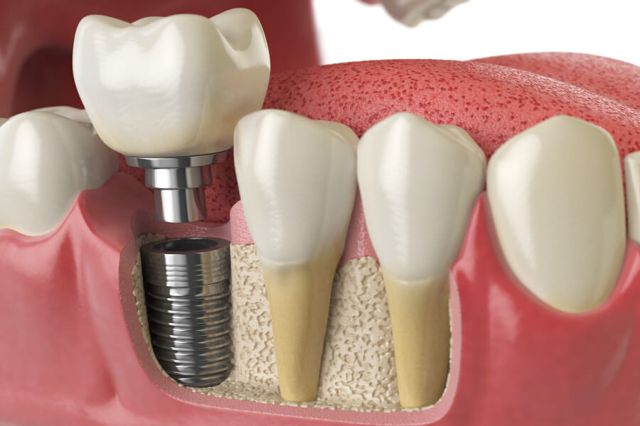 Closeup of a dental implant in a patient's jawbone to replace a missing tooth
