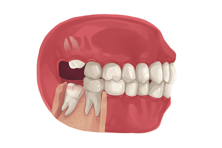 A model showing upper and lower wisdom teeth growing in at odd angles.